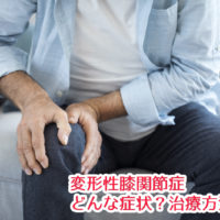 変形性膝関節症の症状・治療
