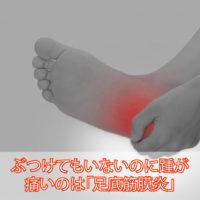 ぶつけてもいないのに踵が痛いのは足底筋膜炎